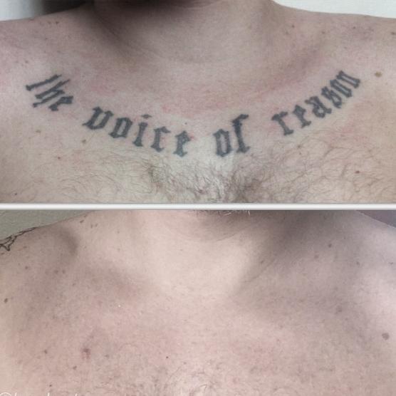 Rimozione tatuaggio 10 sessioni guarita